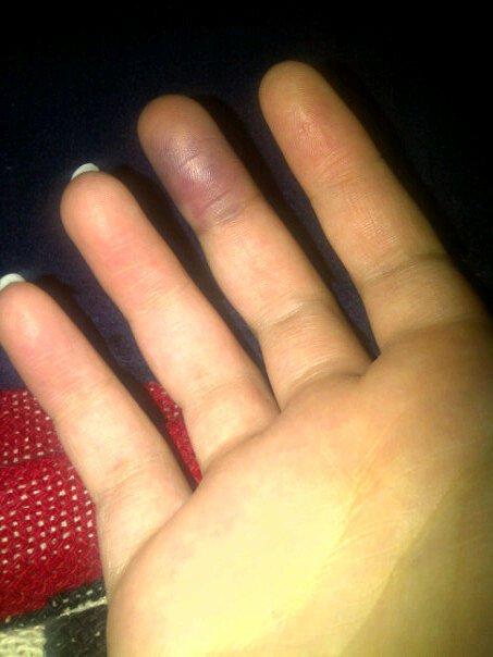 I like to slam my fingers in doors & AmyluvsTrees: I like to slam my fingers in doors pezcame.com