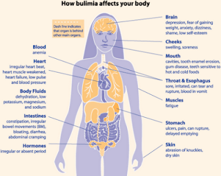 Eating Disorders Bulimia