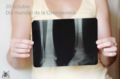 Mujer aguantando radiografia de huesos