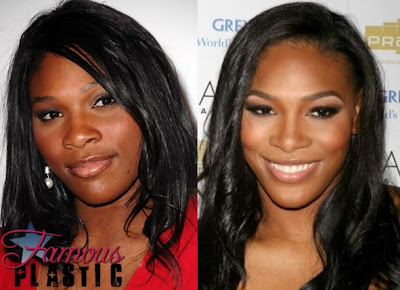 Most of the rumors about Serena Williams plastic surgery began in 2010 ...
