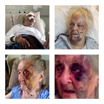 Resultado de imagem para agressão contra idosos
