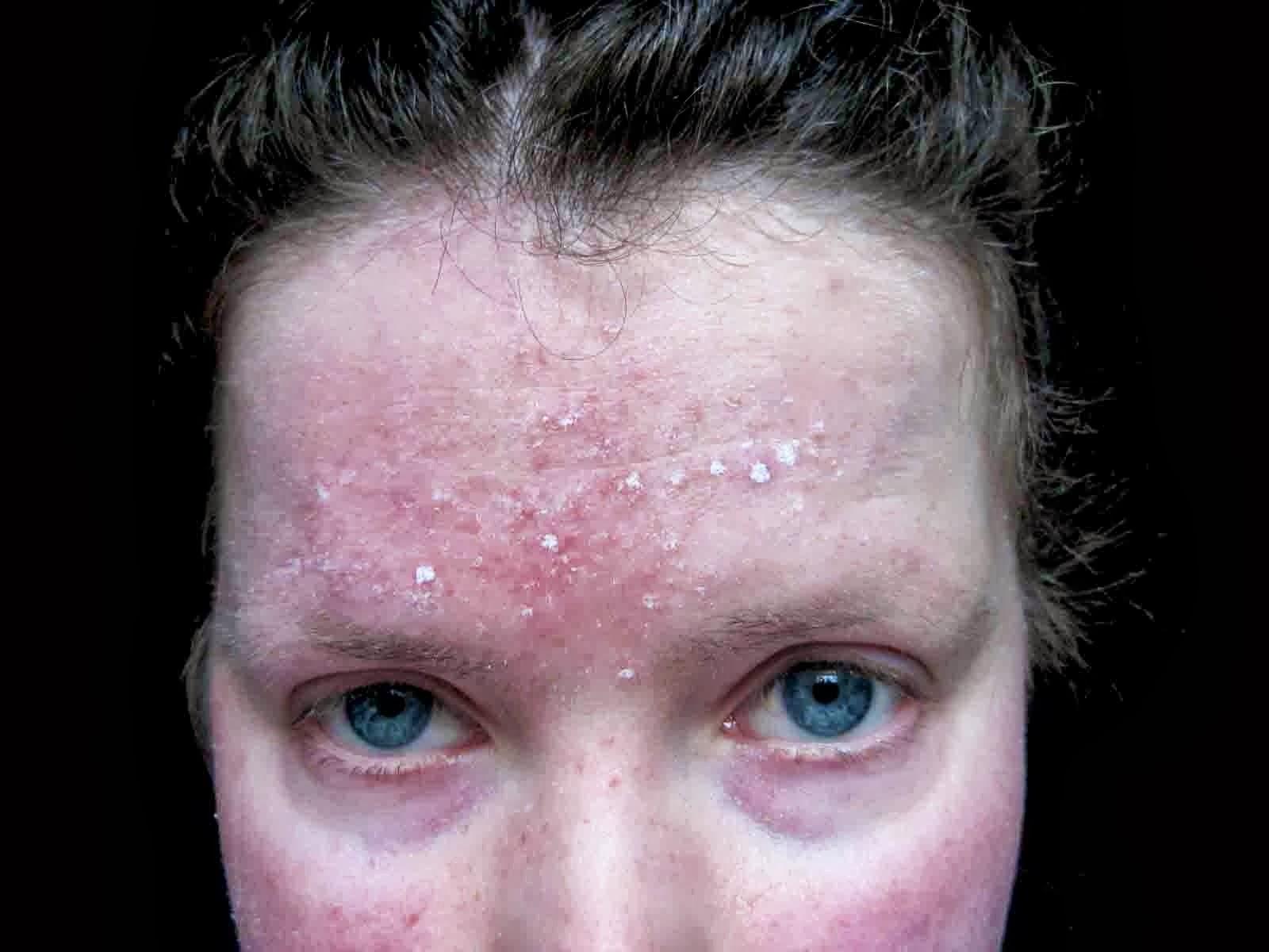 Metronidazole For Face Rash