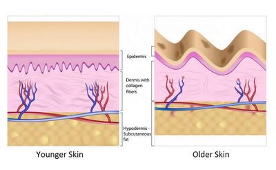 Kehilangan kolagen meningkat seiring dengan pertambahan umur