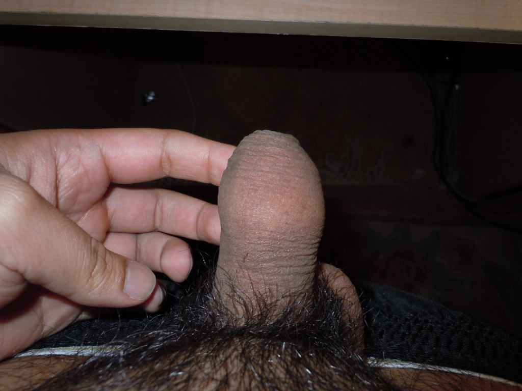 Pictures of My Penis before it was Circumcised