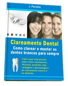 Material: Ebook Clareamento Dental