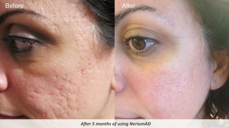 How To Treat Pitted Acne Scars Naturally