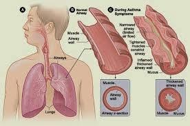 Obat Penyakit Sesak Nafas