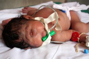 unusual unbelievable medical baby.