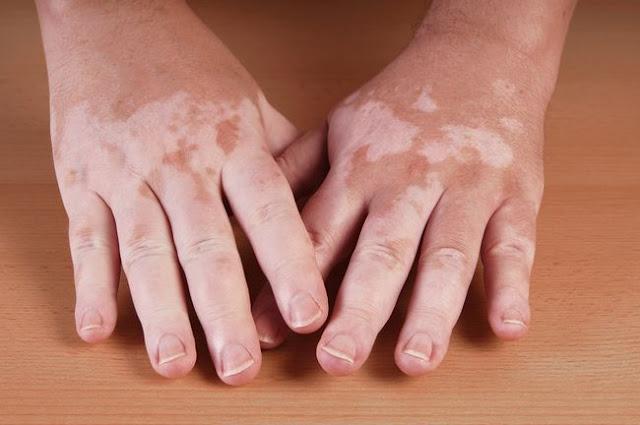 Obat Herbal Untuk Pigmentasi Pada Kulit
