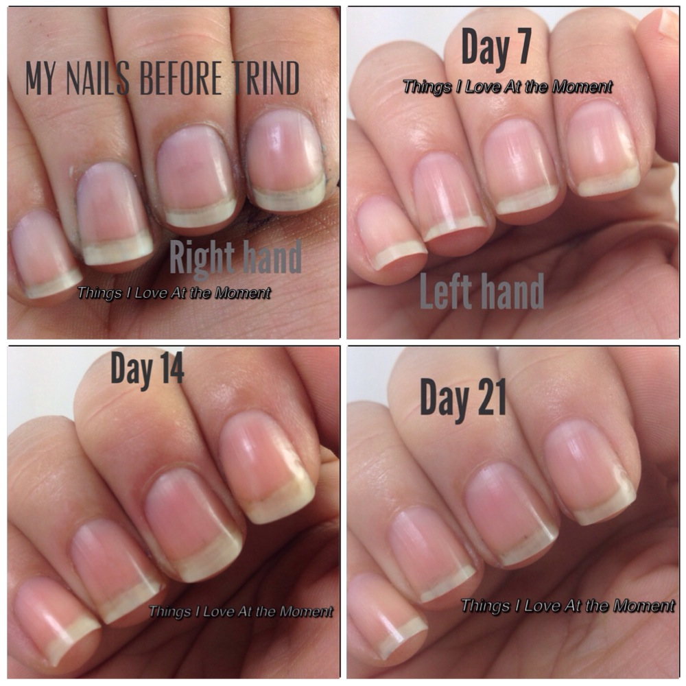 Trind Natural Nail Repair Reviews Nail Ftempo