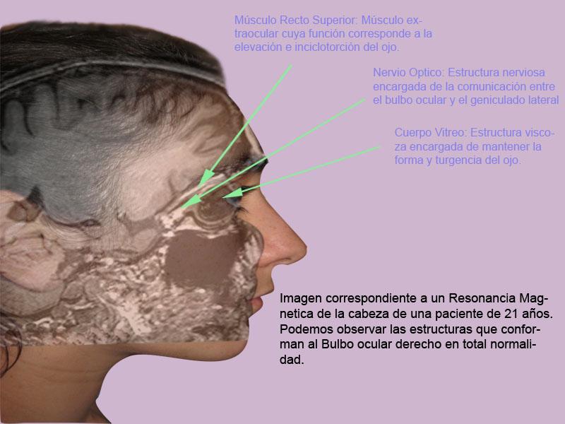 Bulbo Ocular y Vía Óptica: Relación Anatómica de los músculos y la ...