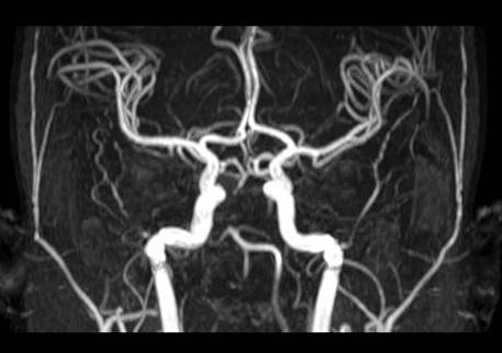 top of basilar syndrome pdf