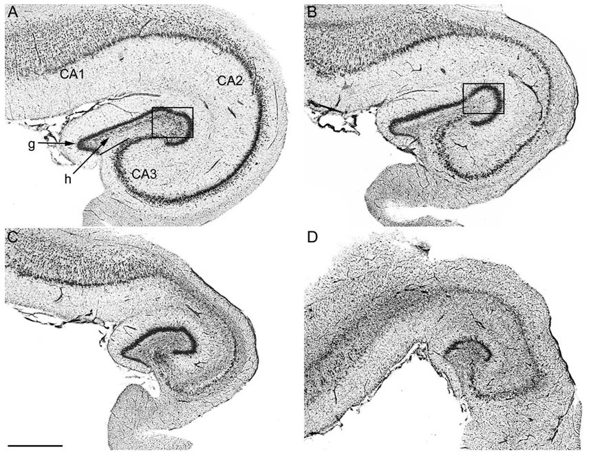 The Neurocritic: Hippocampal Pathology in California Sea ...