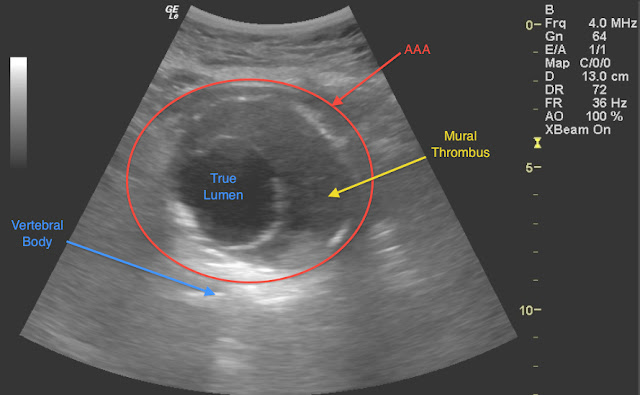 Emory emergency ultrasound december 2011 for Aortic mural thrombus management