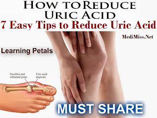 How to Reduce Uric Acid - 7 Easy Tips to Reduce Uric Acid Naturally