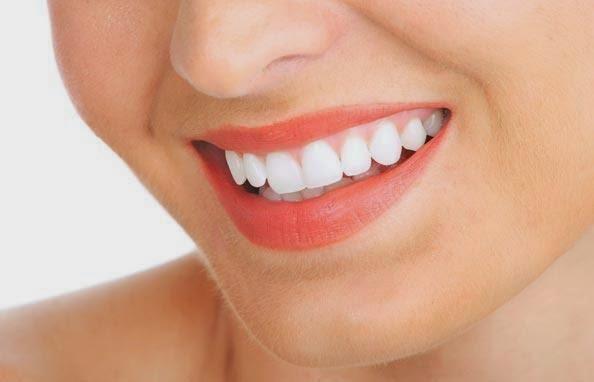 Cara Memutihkan Gigi Secara Cepat Dan Alami Info Kesehatan