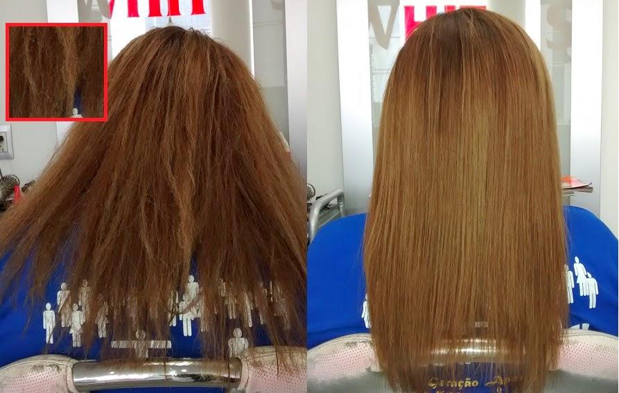 Elfa pharm el champú 7 en 1 contra la caída de los cabello