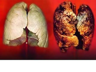 Akciğerlerimizin sağlıklı olduğunu anlamanın yolu