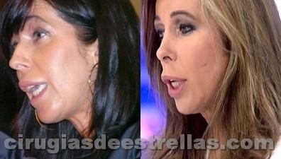 Alicia Sanchéz Camacho y la cirugía plástica