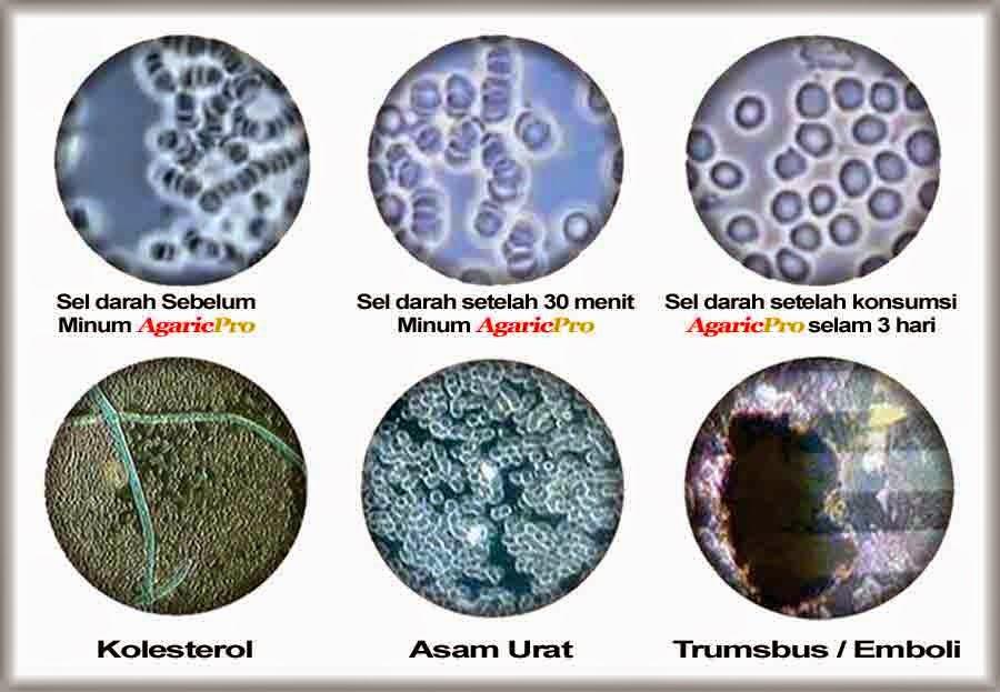 AgaricPro Obat Herbal Thalasemia Paling Aman