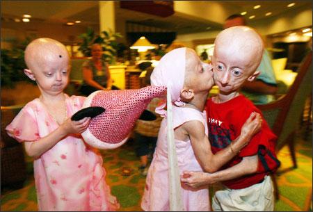Progeria, Progeria disease