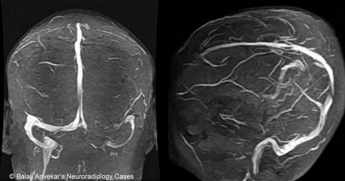 Neuroradiology Cases  Hypoplastic Transverse Sinus Mri
