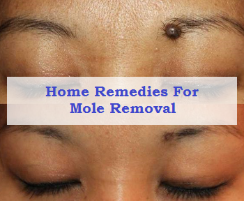 Home Remedies For Mole Removal