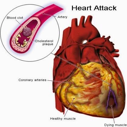 efek diabetis ; jantung