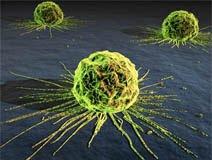 alternatif pengobatan kanker otak dan payudara