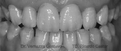 carillas cerámicas porcelana feldespáticas dentales