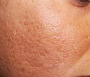 Roaccutane post: How to treat acne scars