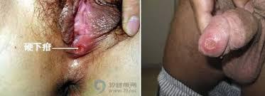 Gambar Penyakit Sifilis Raja Singa