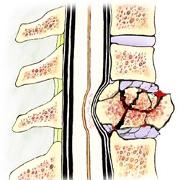 Informatii despre boli care fragilizeaza oasele