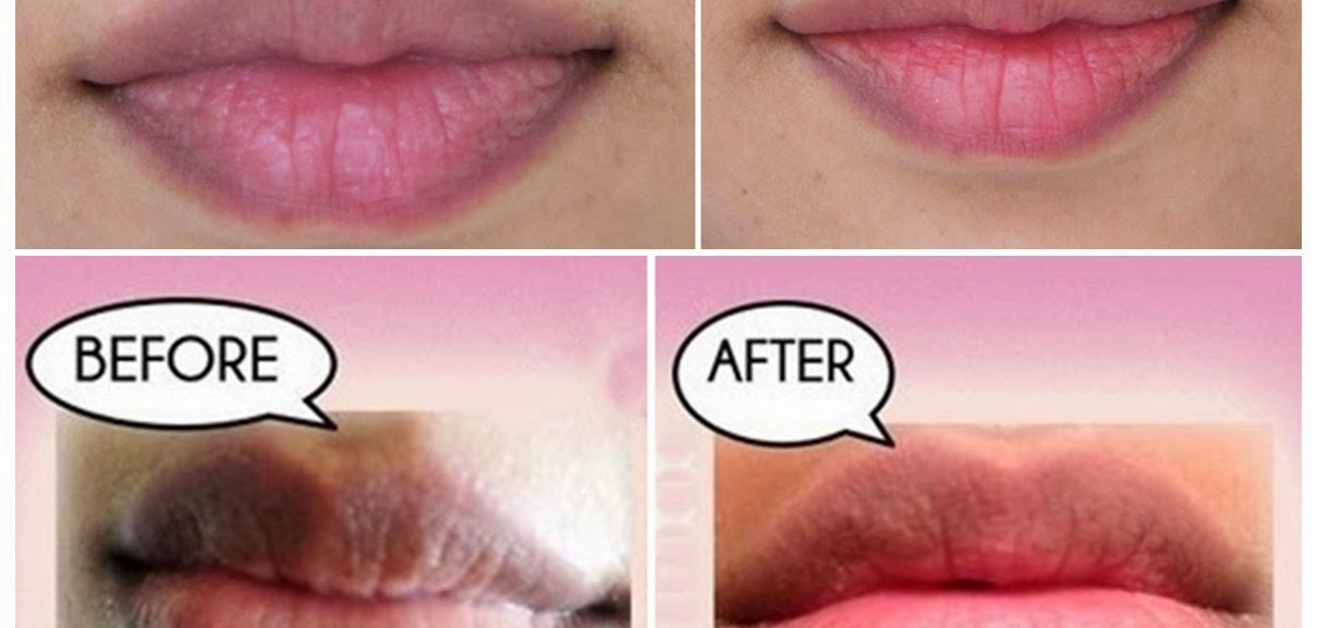 Home Remedies For Darker Upper Lips
