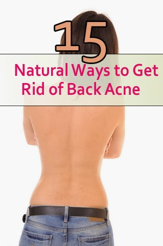 15 Natural Ways to Get Rid of Back Acne