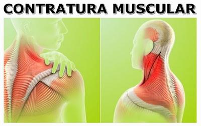A contratura muscular ocorre quando o músculo contrai-se de maneira incorreta e não volta ao seu estado normal de relaxamento. Isso pode acontecer após um exercício muito forte ou quando um indivíduo está muito tenso, vivendo situações de estresse e cheio de preocupações.