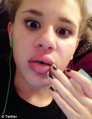 kylie jenner lip challenge how to make it go away
