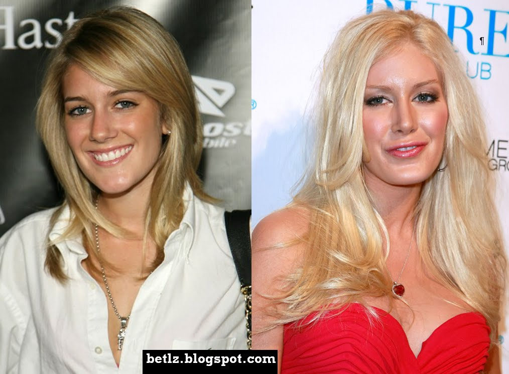 heidi montag before after. Heidi Montag Before And After