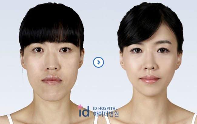 ID Hospital Korea Plastic Surgery: [Orthognathic surgery in korea ...