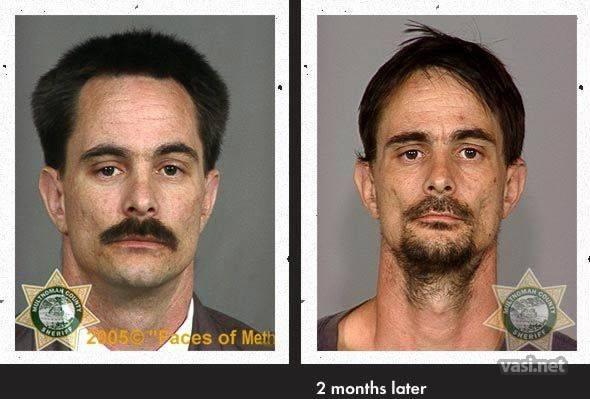wajah ke 11 Wajah Para Pemakai Narkoba Sebelum Dan Sesudah Kecanduan