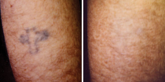 Laser tattoo removal tattoo removal methods for Post laser tattoo removal