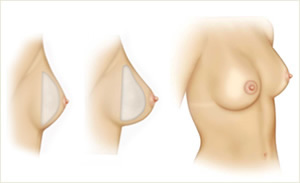 Fotos de mulheres nuas com um pequeno peito