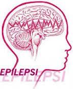 Pengobatan Untuk Sembuhkan Epilepsi