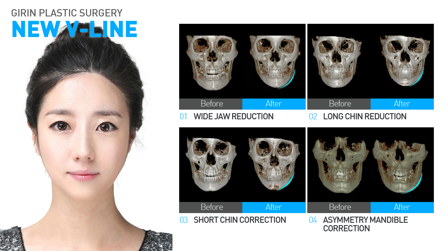 New V-Line (Jaw Reduction, Mandible Reduction) | Girin Plastic Surgery