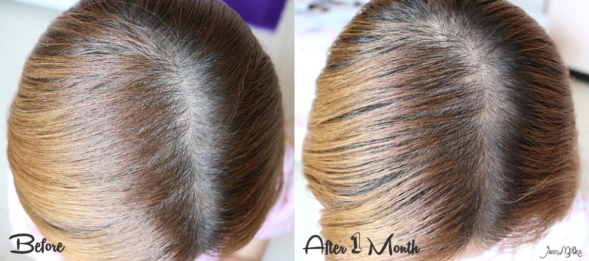 hair, hair serum, rambut rontok, solusi, solusi rambut rontok, cg 210, abbott, serum rambut, rambut