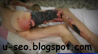 Krokodil drug,krokodil drugs,krokodil drug wiki,krokodil the drug that eats junkies,krokodil drug russia,krokodil drug effects,krokodil drug hln,krokodil drug wikipedia,krokodil drug video,krokodil drug youtube