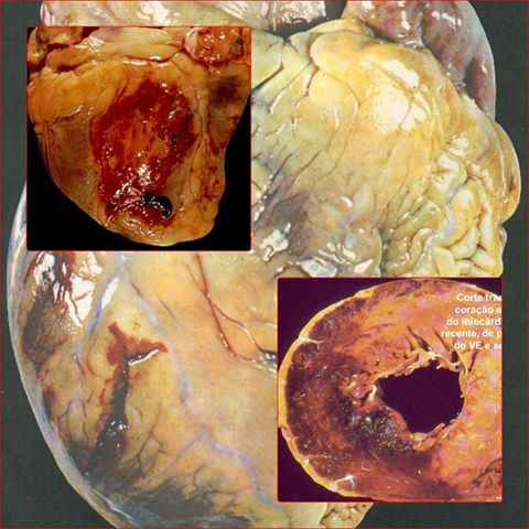 Anatomia & Fisiologia Humana: Infarto Agudo do Miocárdio (IAM)