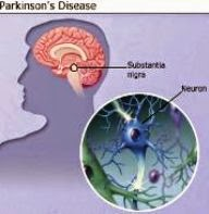 Parkinson's Disease, PD