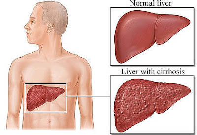 Causes, prevention and treatment of cirrhosis