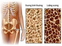 Chế độ ăn uống, kiêng kị cho người bị mắc bệnh Loãng xương